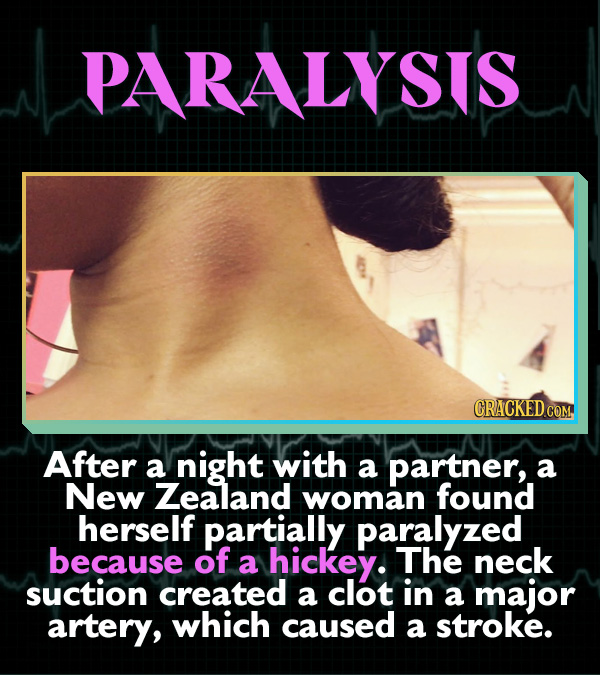 15 Horrifying Ways Sex Can Go Wrong - After a night with a partner, a New Zealand woman found herself partially paralyzed because of a hickey. The nec