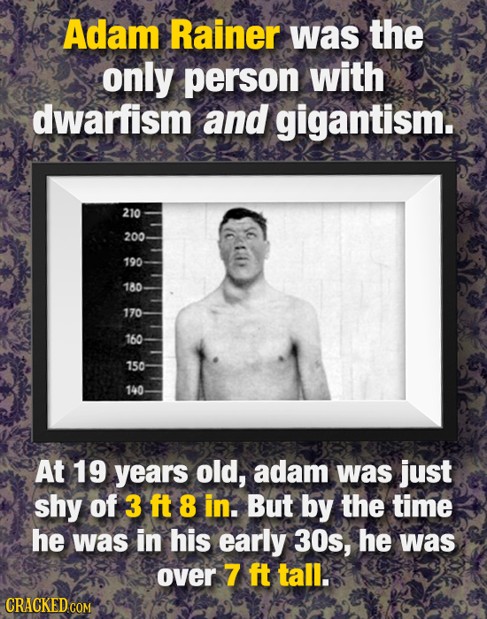 Adam Rainer Was the only person with dwarfism and gigantism. 210 200 190 180 170 160 150 140 At 19 years old, adam was just shy of 3 ft 8 in. But by t
