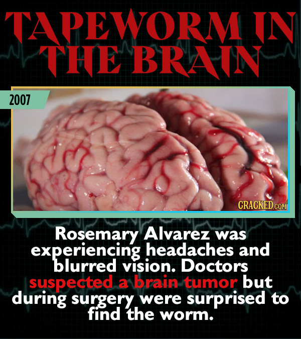 15 Weird Cases That Walked Into Doctors' Operating Rooms - Rosemary Alvarez was experiencing headaches and blurred vision. Doctors suspected a brain t