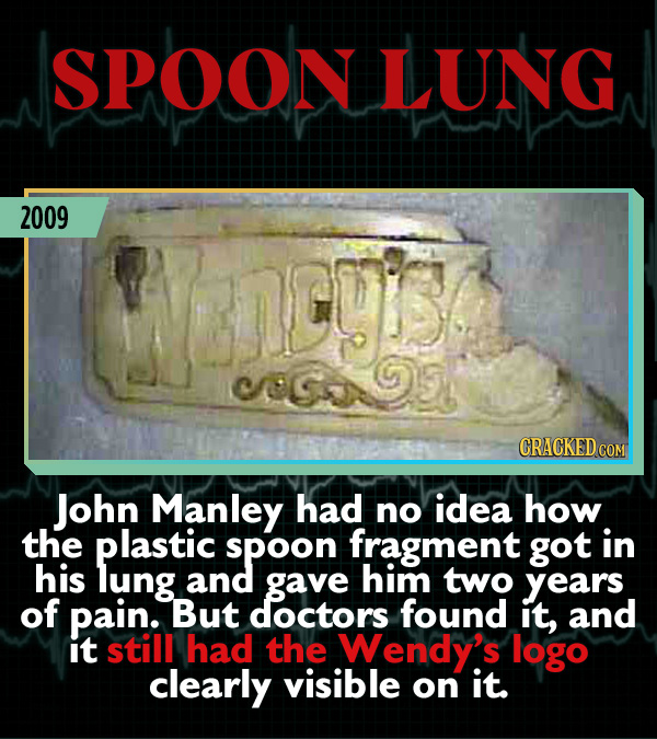 15 Weird Cases That Walked Into Doctors' Operating Rooms - John Manley had no idea how the plastic spoon fragment got in his lung and gave him two yea