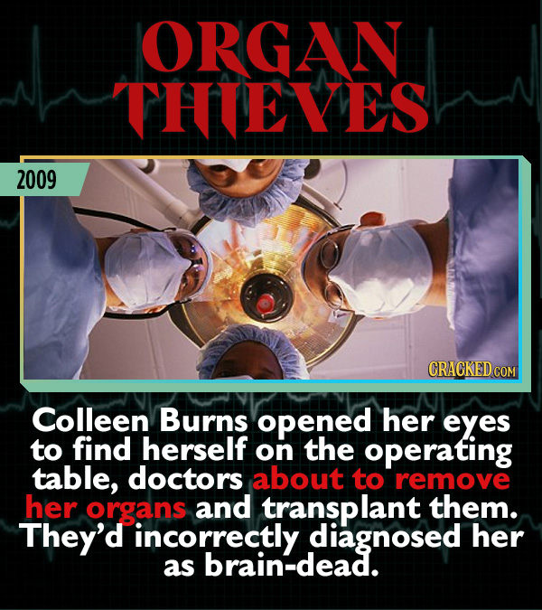 15 Weird Cases That Walked Into Doctors' Operating Rooms - Colleen Burns opened her eyes to find herself on the operating table, doctors about to remo