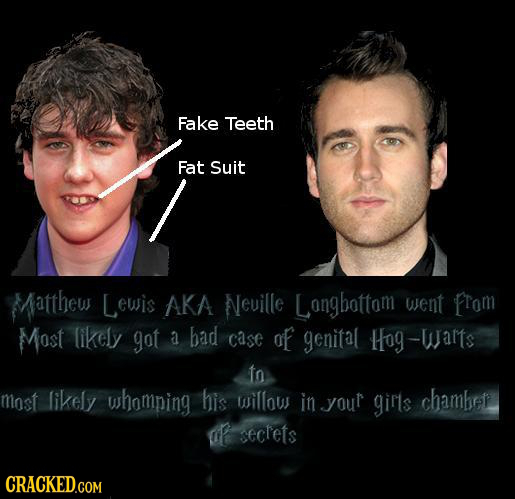 Fake Teeth Fat Suit Matthew Lewis AKA Neuille Longbottom went From Most likely got a bad case of genital Hog-wamts to most likely whomping his willous