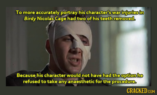 To more accurately portray his character's war injuries in Birdy Nicolas Cage had two of his teeth removed. Because his character would not have had t