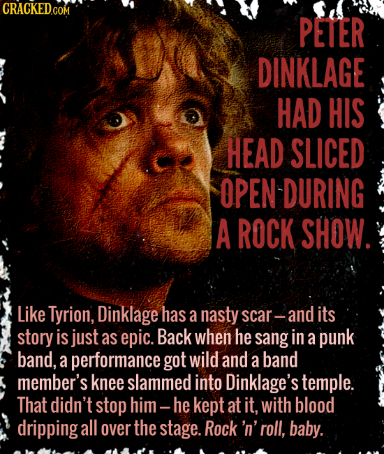 PETER DINKLAGE HAD HIS HEAD SLICED OPEN-DURING A ROCK SHOW. Like Tyrion, Dinklage has a nasty scar-and its story is just as epic. Back when he sang in