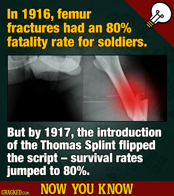 In 1916, femur fractures had an 80% fatality rate for soldiers. But by 1917, the introduction of the Thomas Splint flipped the script -survival rates