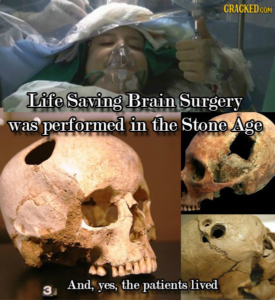 CRACKED co Life Saving Brain Surgery was performed in the Stone Age And, yes, the patients lived 3