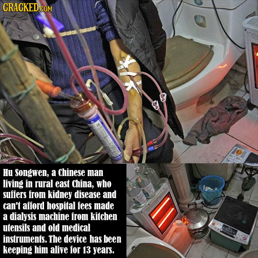 Hu Songwen, a Chinese man living in rural east China, who suifers rom kidney disease and can't afford hospital fees made a dialysis machine from kitch