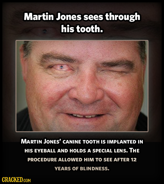Martin Jones Sees through his tooth. MARTIN JoNes' CANINE TOOTH IS IMPLANTED IN HIS EYEBALL AND HOLDS A SPECIAL LENS. THE PROCEDURE ALLOWED HIM TO SEE