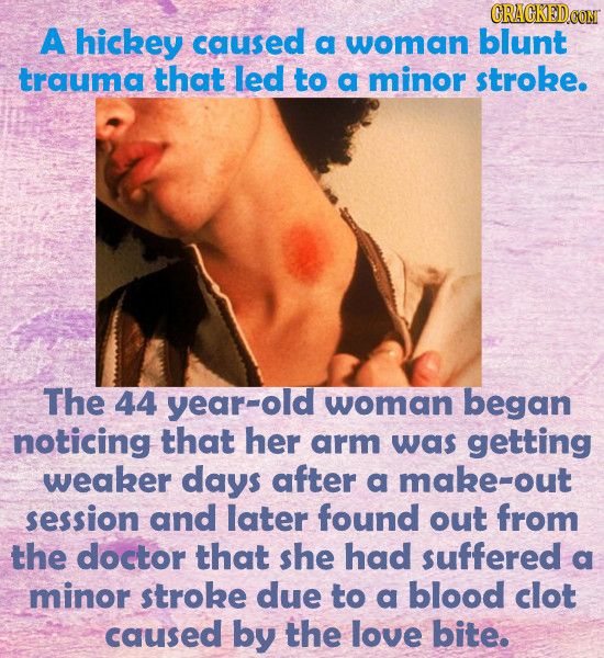 CRACKED A hickey caused a woman blunt trauma that led to a minor stroke. The 44 year-old woman began noticing that her arm was getting weaker days aft