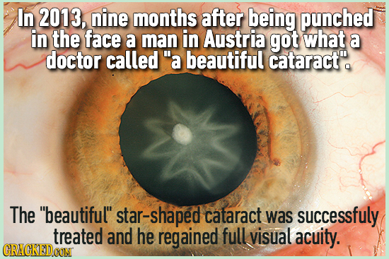 In 2013, nine months after being punched in the face a man in Austria got what a doctor called a beautiful cataracte The beautiful star-shaped cat