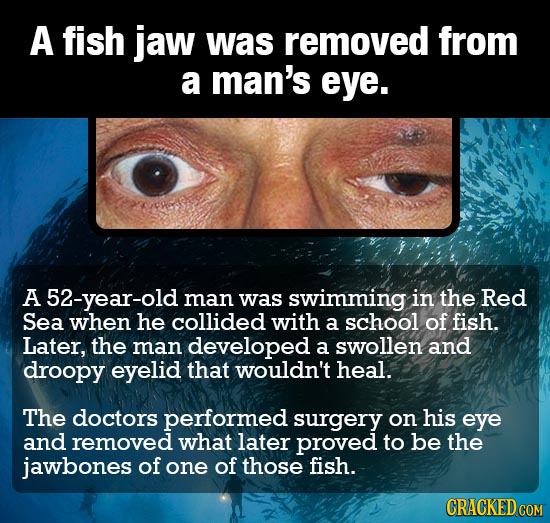 A fish jaw was removed from a man's eye. A 52-year-old man was swimming in the Red Sea when he collided with a school of fish. Later, the man develope