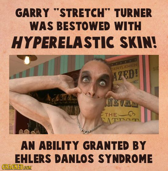 GARRY STRETCH TURNER WAS BESTOWED WITH HYPERELASTIC SKIN! GENTLEMEN SIC AZED! EVA THE ATTT AN ABILITY GRANTED BY EHLERS DANLOS SYNDROME CRACKED CONT