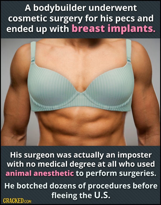 A bodybuilder underwent cosmetic surgery for his Pecs and ended up with breast implants. His surgeon was actually an imposter with no medical degree a