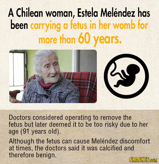 A Chilean woman, Estela Melendez has been carrying fetus in her womb for a than 60 more years. Doctors considered operating to remove the fetus but la