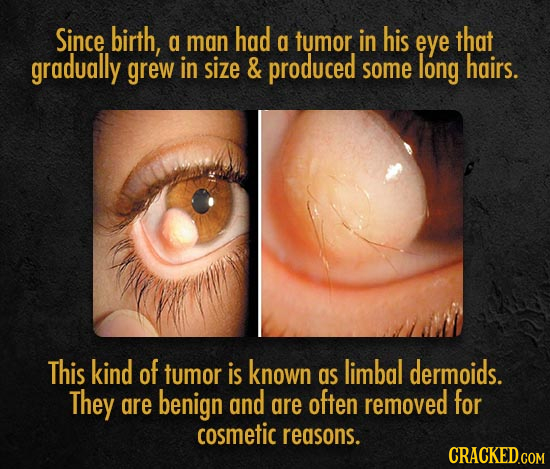 Since birth, had a man a tumor in his eye that gradually grew in size & produced some long hairs. This kind of tumor is known as limbal dermoids. They