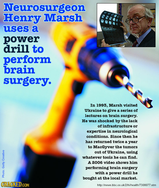 Neurosurgeon Henry Marsh uses a na power drill to perform brain surgery. In 1993, Marsh visited Ukraine to give a series of lectures on brain surgery.