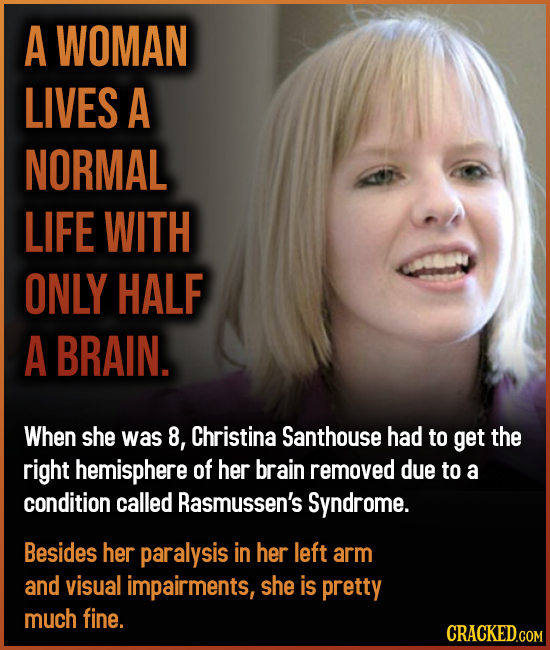A WOMAN LIVES A NORMAL LIFE WITH ONLY HALF A BRAIN. When she was 8, Christina Santhouse had to get the right hemisphere of her brain removed due to a