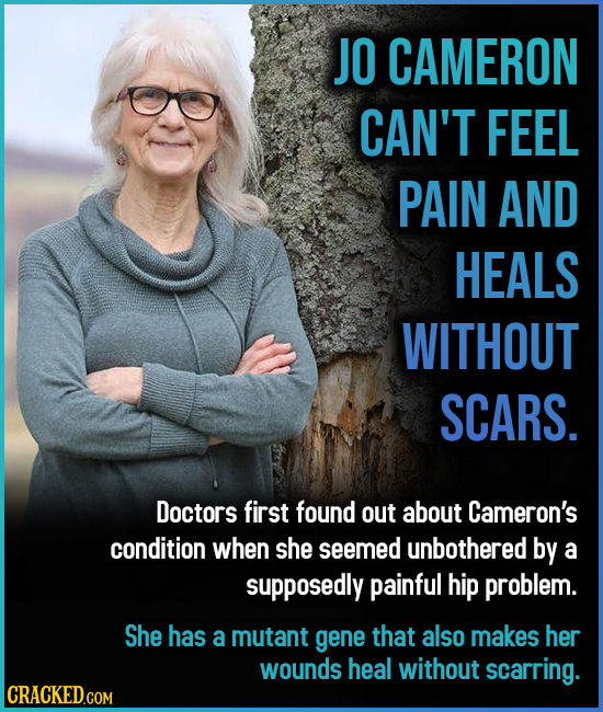 JO CAMERON CAN'T FEEL PAIN AND HEALS WITHOUT SCARS. Doctors first found out about Cameron's condition when she seemed unbothered by a supposedly painf