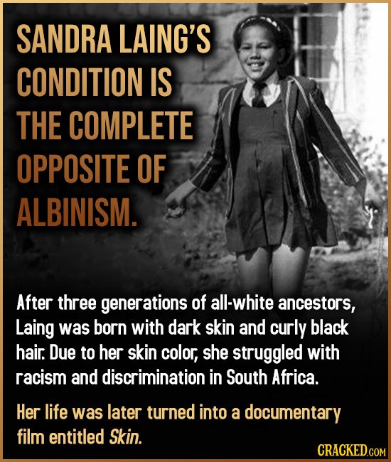 SANDRA LAING'S CONDITION IS THE COMPLETE OPPOSITE OF ALBINISM. After three generations of all-white ancestors, Laing was born with dark skin and curly