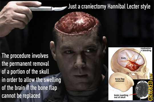Just a craniectomy Hannibal Lecter style contusion +bleeding The procedure involves dura the permanent removal of a portion of the skull in order to a