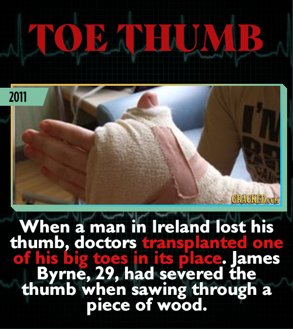 15 Weird Cases That Walked Into Doctors' Operating Rooms - When a man in Ireland lost his thumb, doctors transplanted one of his big toes in its place