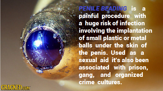 PENILE BEADING is a painful procedure with a huge risk of infection involving the implantation of small plastic or metal balls under the skin of the p