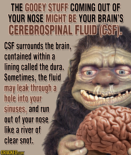THE GOOEY STUFF COMING OUT OF YOUR NOSE MIGHT BE YOUR BRAIN'S CEREBROSPINAL FLUID (CSF). CSF surrounds the brain, contained within a lining called the