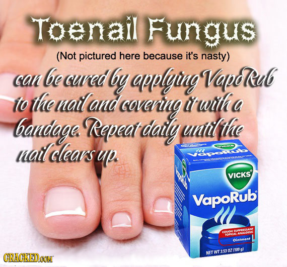 Toenail Fungus (Not pictured here because it's nasty) be can cuved by applying VapdRub to the natland covening it wtth a bandage. Repeat daily untlthe