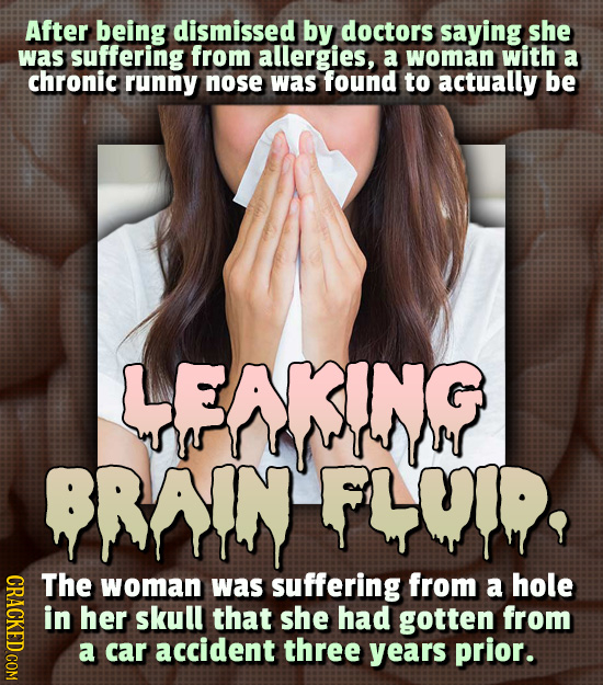 After being dismissed by doctors saying she was suffering from allergies, a woman with a chronic runny nose was found to actually be LFNKINP BRAIN FLM