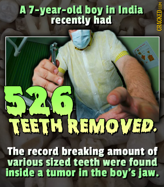 A7-year-old boy in India recently had CRAth 526 TEETH REMOVED The record breaking amount of various sized teeth were found inside a tumor in the boy's
